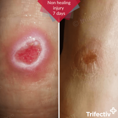 Persistent injury healed in 7 days