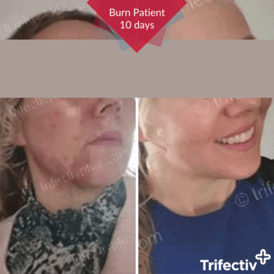 Hot oil burn on face cleared after 10 days