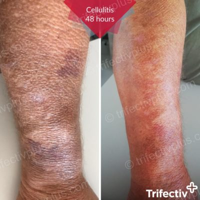 Chronic cellulitis after 48 hours