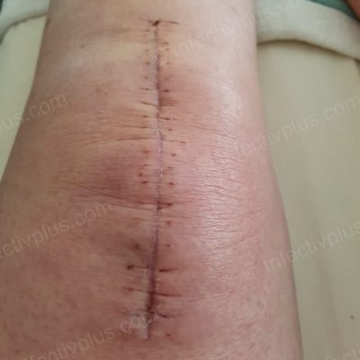 Post knee replacement 2 days after staples removed